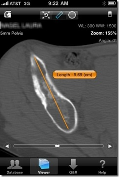 Post image for OsiriX Medical App Puts a Small DICOM Workstation in Your Pocket [App Review]