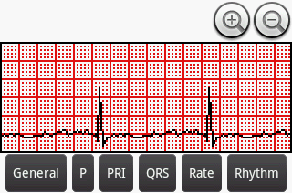Post image for Can Android teach EKG interpretation?  An overview of three popular Android EKG apps [Android medical app review]