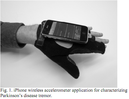 Post image for Researchers use iPhone accelerometer to diagnose Parkinson's disease tremor, test remote diagnosis potential