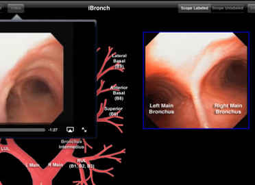 Post image for iBronch app provides a virtual glimpse into bronchoscopy on iPad, but is too abbreviated