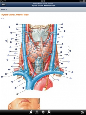 Post image for Skyscape's version of Netter's Atlas of Anatomy is an average Anatomy Atlas for iPad
