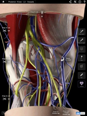 Post image for Knee Pro III app will help orthopedic surgeons with patient education