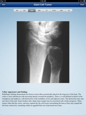 Post image for Tumorpedia app for musculoskeletal tumors is well designed but light on content