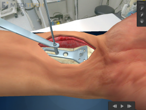 Post image for New free iPad medical app shows future of surgical patient education