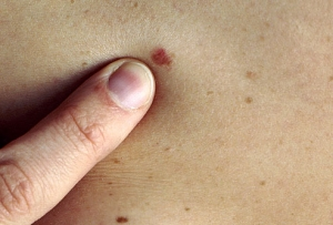 Post image for Using iPhones to Identify Skin Cancer in Sweden