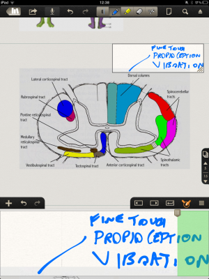 Post image for Notability raises standard of stylus note taking apps and medical literature annotation