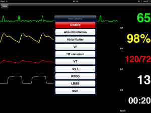 Post image for SimMon creates a remotely controlled patient monitor app which can be used for medical simulation