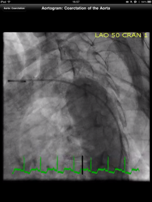 Post image for CathSource app on iPad is an essential cardiac catheterization resource