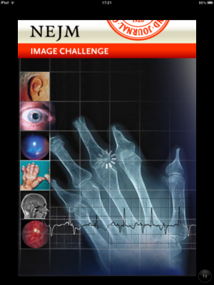 Post image for Test your diagnostic skills with the NEJM Image Challenge app
