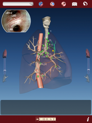 Post image for American College of Chest Physicians misses the mark with iPad apps