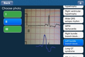 Post image for ECG Analysis App allows users to upload photos of an ECG for analysis