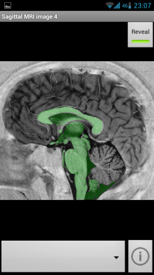 Post image for NeuroSlice app for Android aims to teach neuroanatomy with a large library of images
