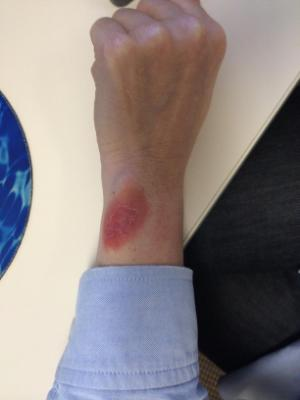 Post image for Issues with Fitbit Force rash more widespread than initially believed