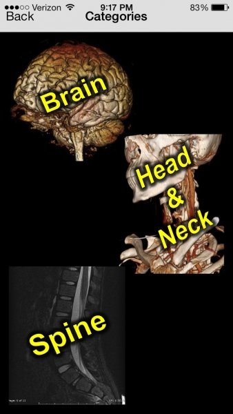 Free Neurorad Cases 1