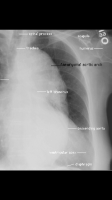 Post image for Chest x-ray training app tests and teaches you radiology skills