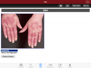 Post image for Review of Fitzpatrick's Dermatology Flashcards app