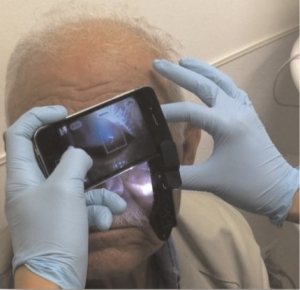 Post image for iPhone attachment allows doctors to view the front and back of an eye