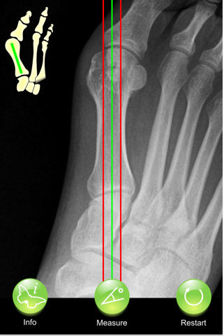 Hallux Angles in use.jpg